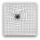 Degeneracion macular_retina