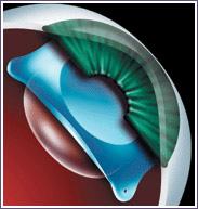 lentilla intraocular presbicia, operacion presbicia, operacion miopia