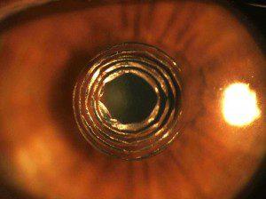 Intracor cirugia, ojo operado intracor, intracor presbicia