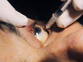 tratamiento, pinchazo ojo, ceguera, retina, retinopatia