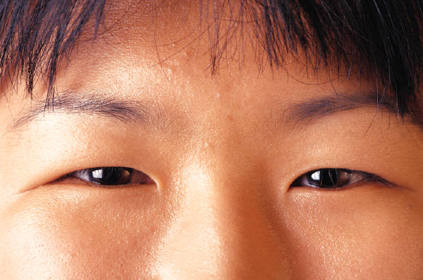 cirugia refractiva china, ojos de chino