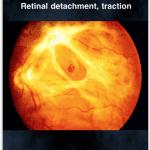 retina explicacion, iphone retina app