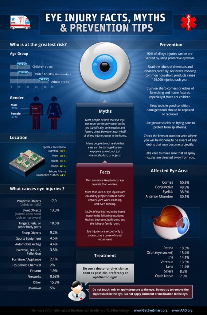 Traumatismo ocular, traumatismo ojo, golpe ojo, lesion ocular, lesion ojo, informacion golpe ojo, consejo golpe ojo, que hacer golpe ojo