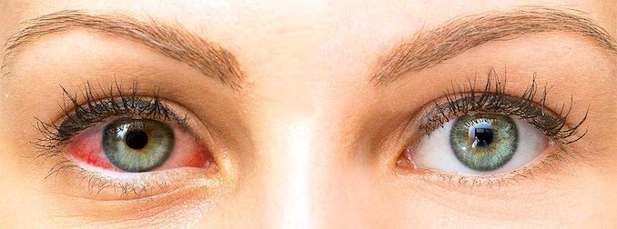 ojo seco rojo picor