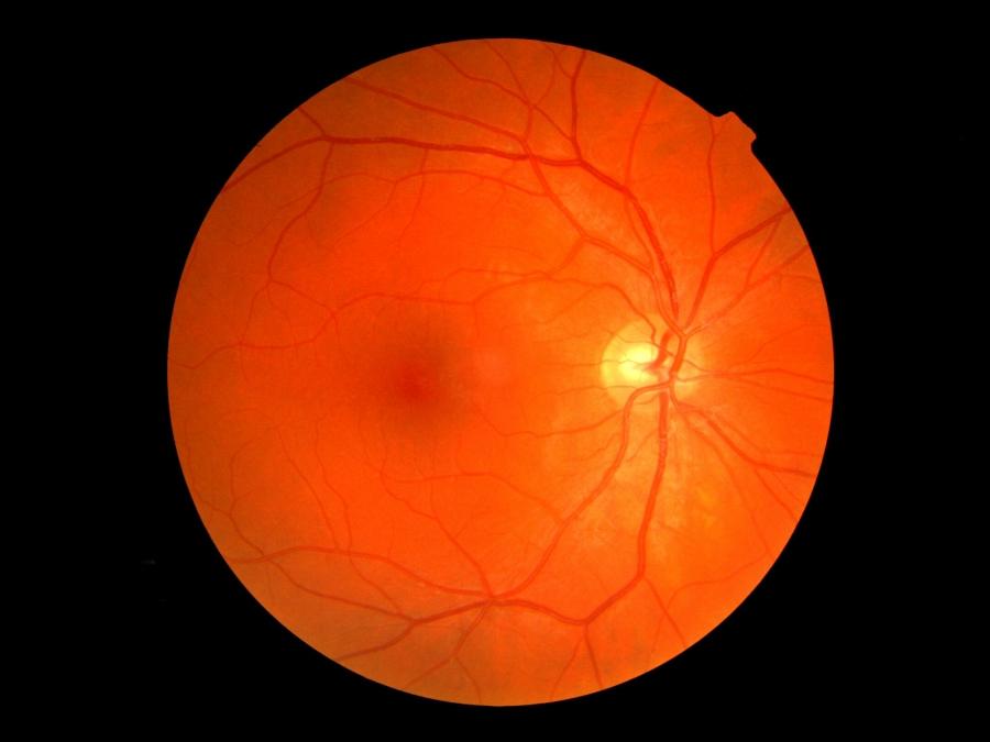 que significa baja vision, que es baja vision, baja vision ayudas opticas, baja vision ayudas, baja vision ayudas visuales, ayudas para baja vision, Glaucoma tratamiento, glaucoma tratamiento quirurgico, glaucoma tratamiento natural, glaucoma tratamiento casero, glaucoma tratamiento medico, glaucoma tratamiento lentes de contacto, tratamiento glaucoma lentes de contacto, diagnostico y tratamiento del glaucoma, glaucoma diagnostico, glaucoma dia