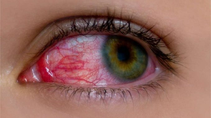 sangre ojo rojo