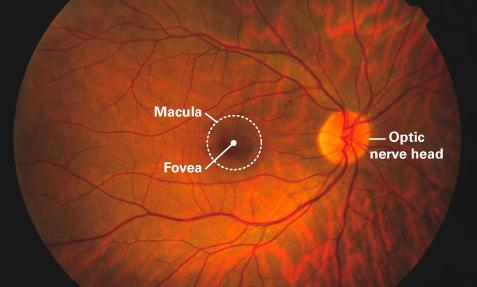 analisis retina