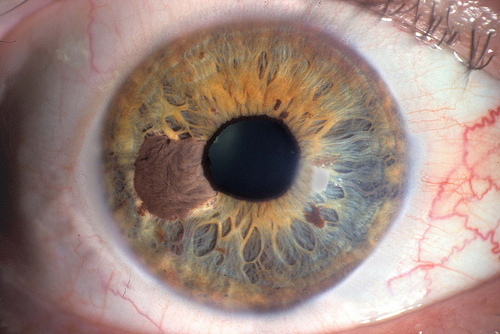 cancer melanoma ojo