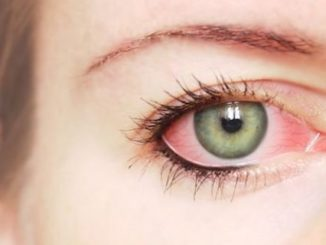 ojo rojo conjuntivitis