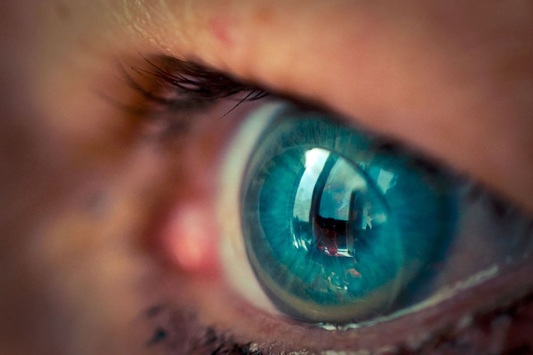 Las lentes de contacto modifican la flora bacteriana ocular