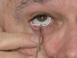 colocar anillo silicona glaucoma