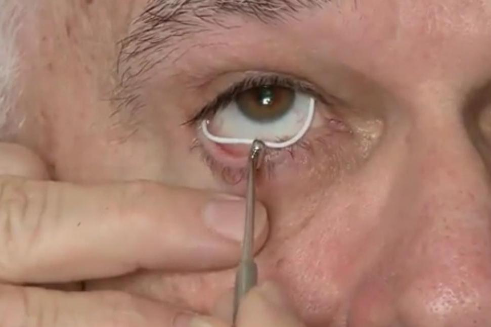 Anillo silicona glaucoma colocacion