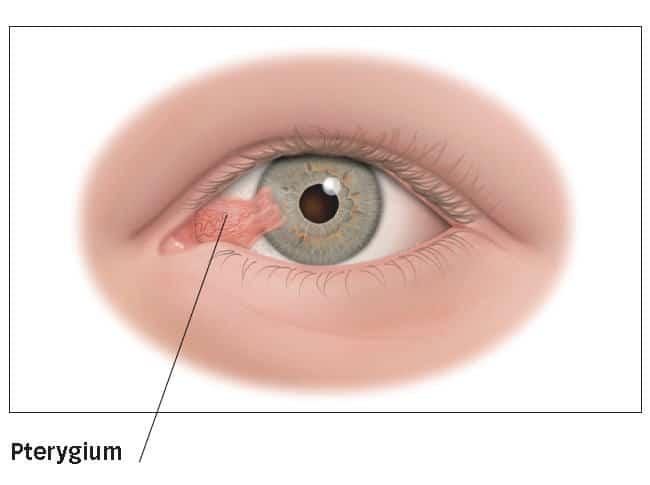 Pterygium cirugia del pterigium