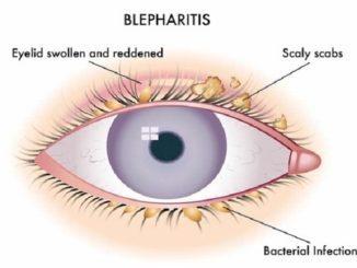 blefaritis ojo curacion