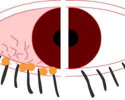 blefaritis informacion